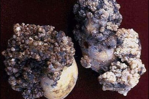 «Картопляний рак» нищить чернівецьку картоплю! (Фото)