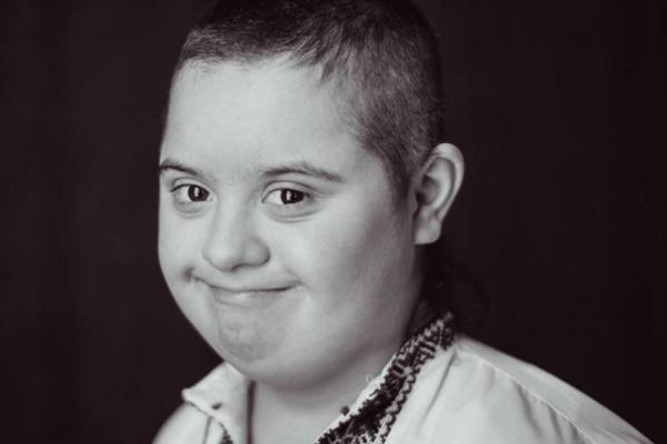 «Діти з особливими потребами». Що таке синдром Дауна?