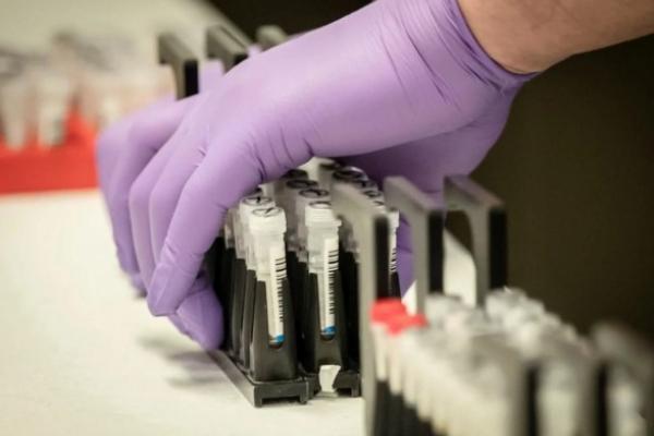 На Буковині виявили 28 випадків COVID-19