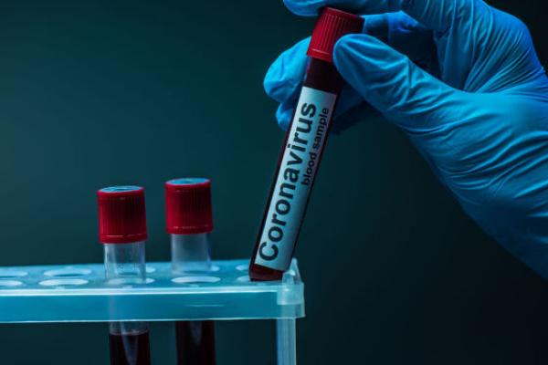 Майже сотня буковинців захворіли на COVID-19 за останню добу