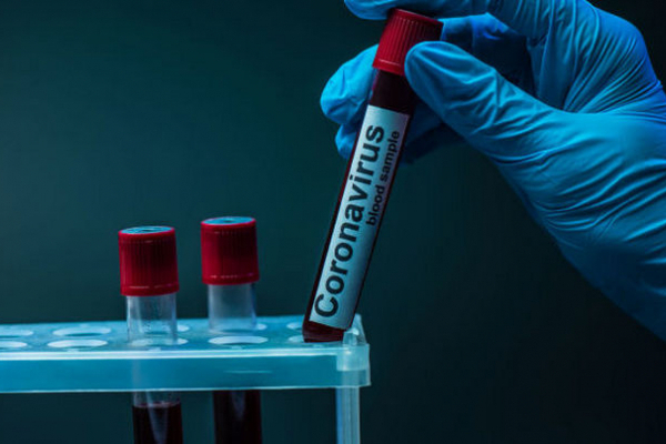За добу кількість буковинців, які одужали від COVID-19 більша, ніж нових випадків
