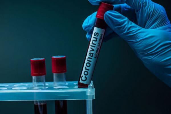 COVID-19 на Буковині. У перший день весни підтверджено 504 випадки зараження